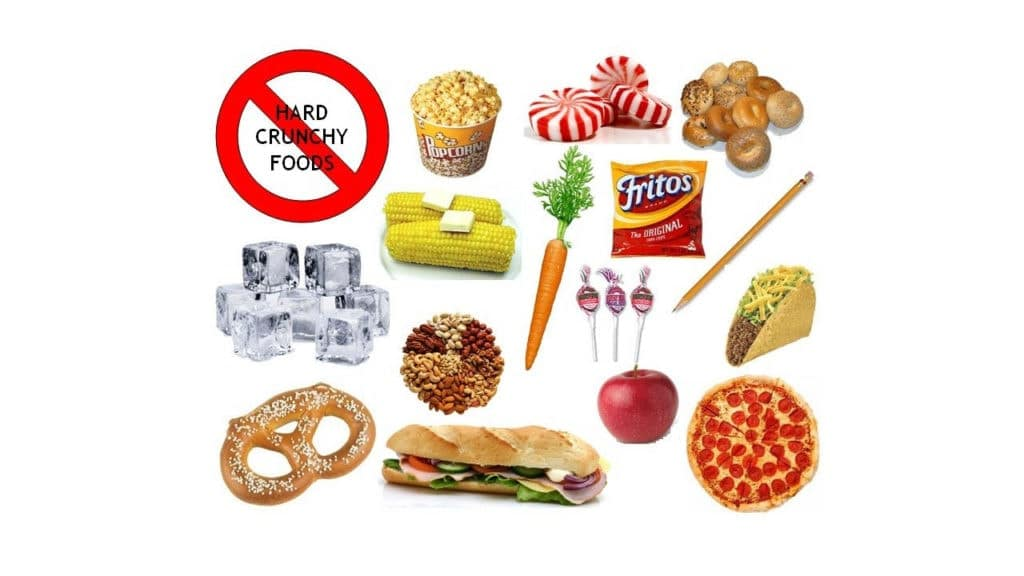 Food to avoid with braces