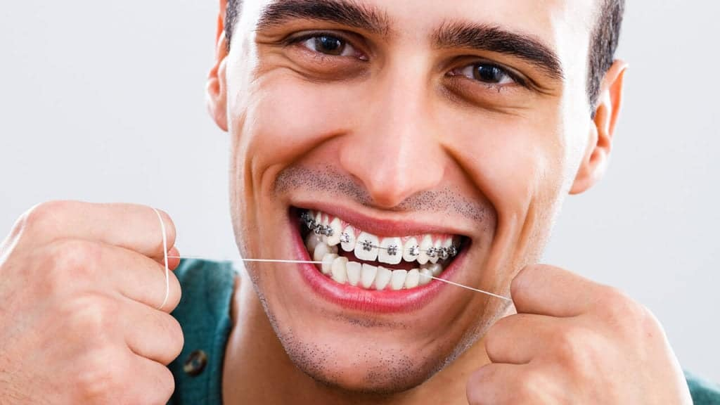 Brushing and flossing with braces
